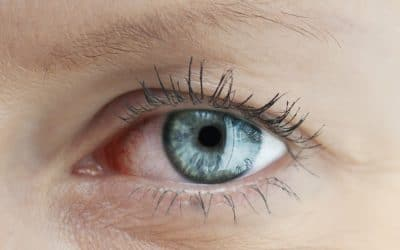 لیفت چشم با پلاسماجت