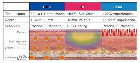 لیفت صورت و گردن با هایفو چهاربعدی HIFU 4D